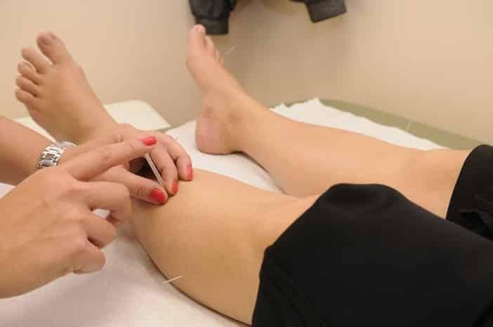 Médecine alternative : acupuncture